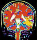 brain scan1